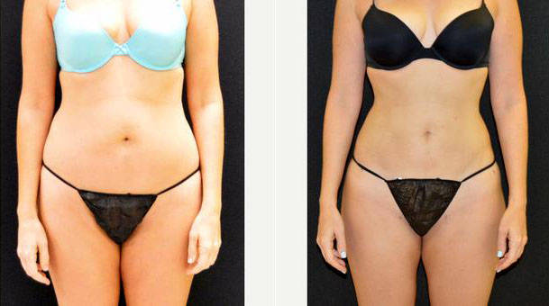 38 Year Old Underwent Liposculpting Of Her Abdomen Flanks Shown 1 Month After Before By Dr Frank Campanile Md Denver Plastic Surgeon Liposuction Info Prices Photos Reviews Q A