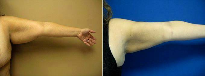 43 Year Old Woman Treated For Arm Fullness By Dr David Shifrin, MD