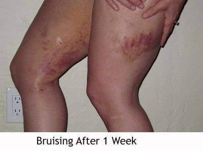 Bruising After 1 Week After Smart Lipo Liposuction Info Prices Photos Reviews Q A