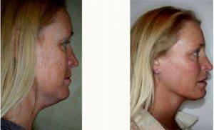Chin Liposuction Prices » Liposuction: Info, Prices, Photos