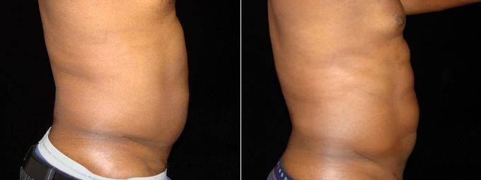 Liposuction Of Abdomen, Waist, Flanks With 6 Pack Abdominal