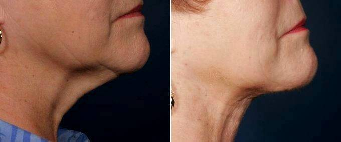 Neck Liposuction With Neck Lift And Thermage By Doctor Elizabeth F