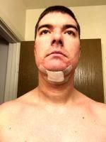 Double Chin Liposuction Recovery Time » Liposuction: Info