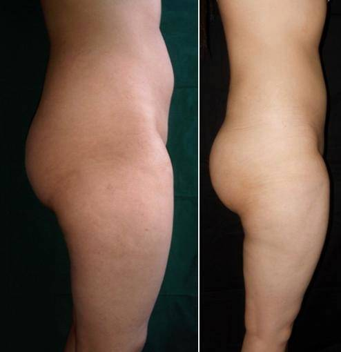 22 Year Old Woman Treated With Body Jet With Doctor Sandip