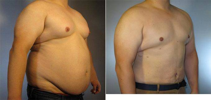 25-Year-Old Male Liposuction Procedure Before & After By Dr