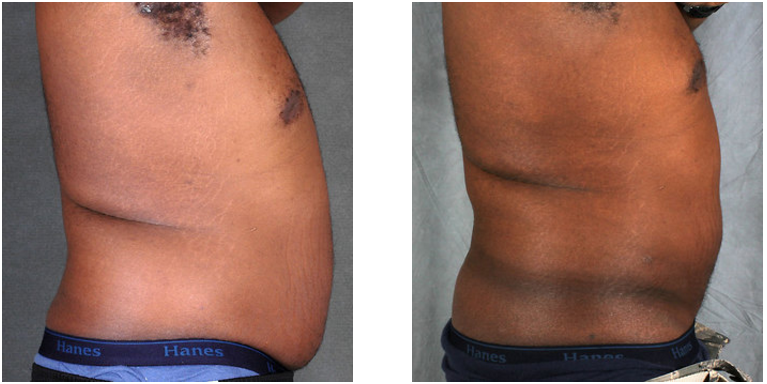 a history of liposuction A lttle history: when lipo was first introduced about 30 years ago, it was done without any tumescent type of infusion and so only small volumes could be done without too when liposuction is performed under local anesthesia there are virtually no operative deaths the incidence of death from this type of.