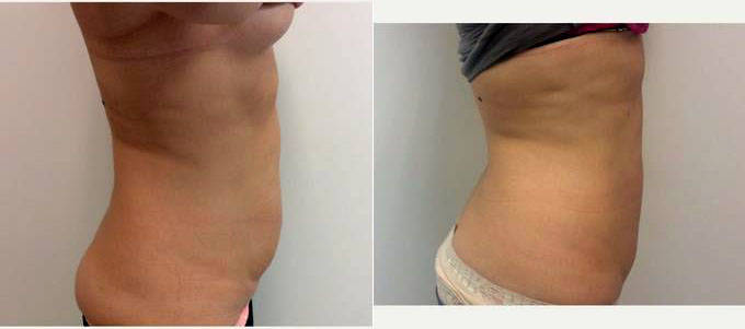 30 Year Old Woman Treated With Laser Liposculpture With