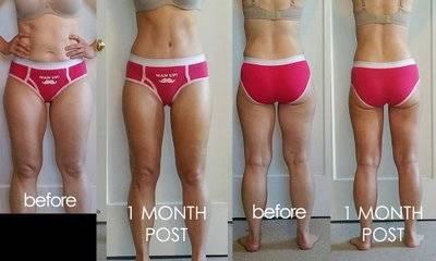Body Jet Liposuction 1 Month Post Op By Dr Joseph Poggi Wichita Plastic Surgeon Liposuction Info Prices Photos Reviews Q A
