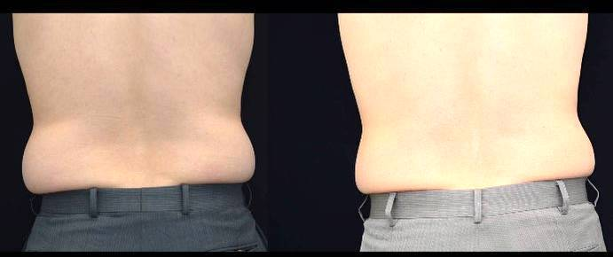 Coolsculpting Detailed Review on