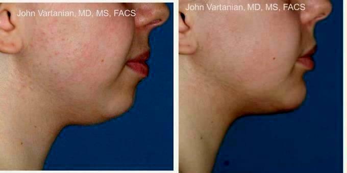 Maryland facial plastic surgeon