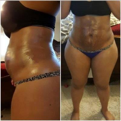 outlet store e920c 8613e Dr. Marlene Welch, Toledo Plastic Surgeon Cheap Liposuction Patient Images  Result
