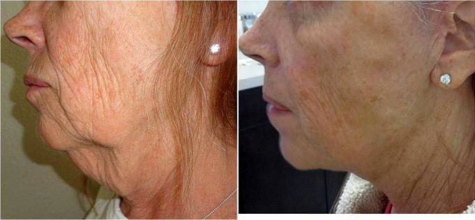 Facelift And Neck Liposuction Procedure Performed In Office Before
