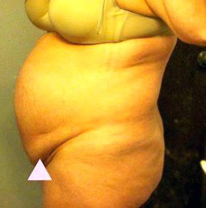 Weight Loss Machine Olx