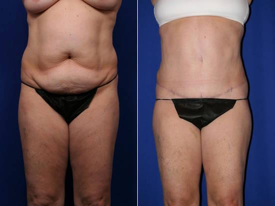 Liposuction And Tummy Tuck By Dr Joe Mlakar, MD, FACS, Fory