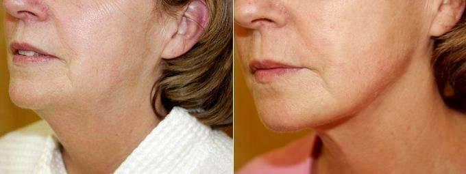 Liposuction Procedure Before After By Dr Elizabeth F Rostan Md