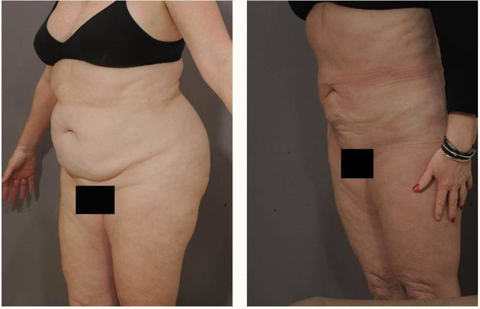 Before pictures and liposuction after