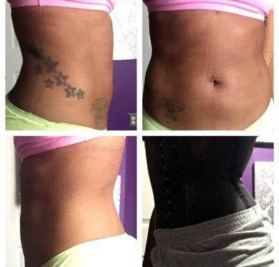 What Can I Expect If I Get Pregnant After Liposuction Liposuction Info Prices Photos Reviews Q A
