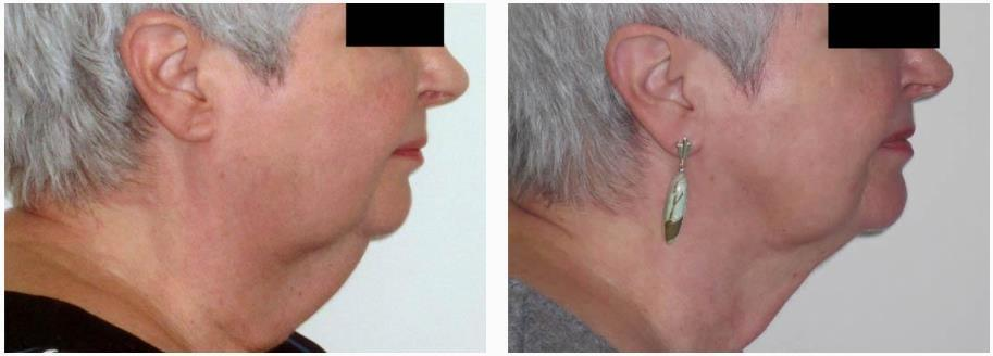 Chin Liposuction By Dr Bryna Kane Dermatologist In Long Beach Ca