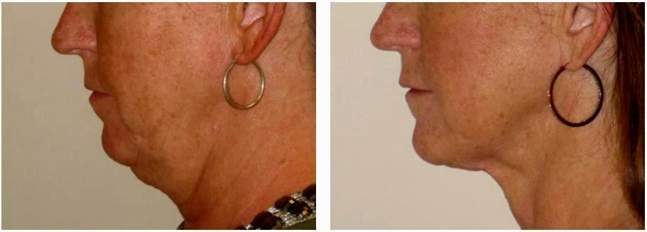 Dr Bryna Kane Dermatologist In Long Beach Ca Neck Lipo 1