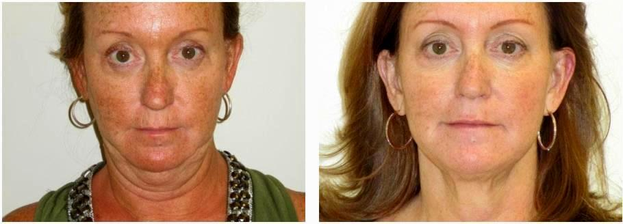 Dr Bryna Kane Dermatologist In Long Beach Ca Neck Lipo 2