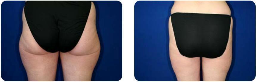 Saddlebags Liposuction By Dr Ken Macdonald Km Surgical