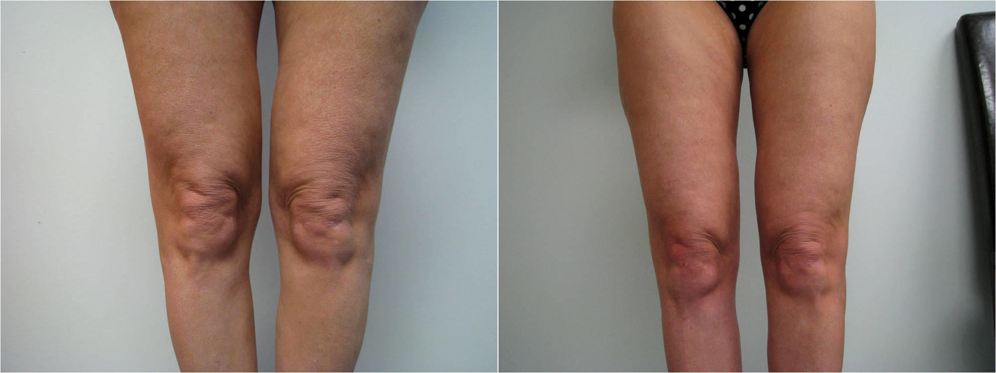 Smartlipo Performed On Inner Knees By Dr. Earl Bryant II, DO, Newtown  Square, PA (2) » Liposuction: Info, Prices, Photos, Reviews, Q&A