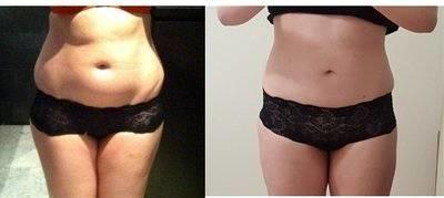 Lipo After Pregnancy Before And After Pic Liposuction Info Prices Photos Reviews Q A